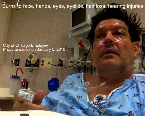 City of Chicago Employee victim of Propane Explosion